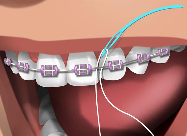 Fio-dental-aparelho