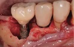 Pode ocorrer rejeição em implantes?