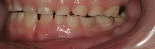 Doutor, meu menor range muito os dentes à noite. Será stress?